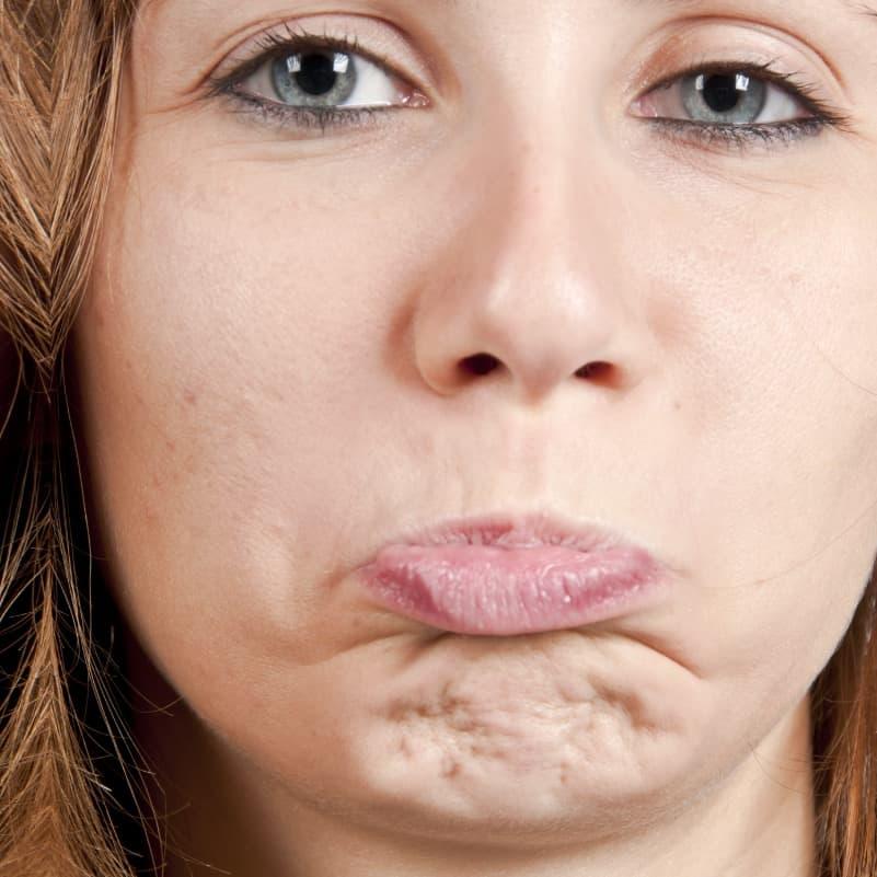 Pebbled Chin